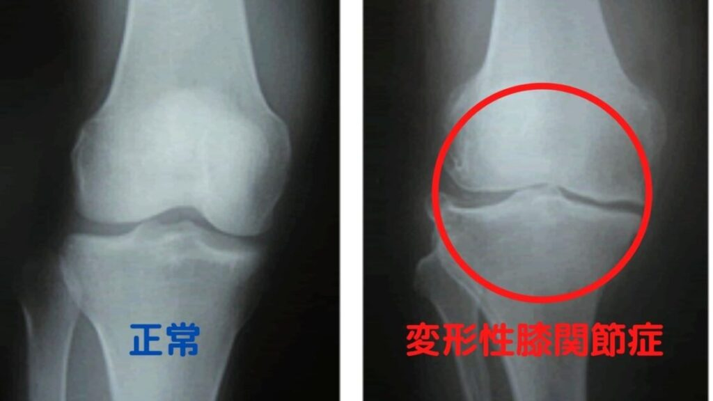 妙典-膝の痛み